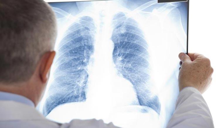 In arrivo due nuovi farmaci contro il tumore al polmone