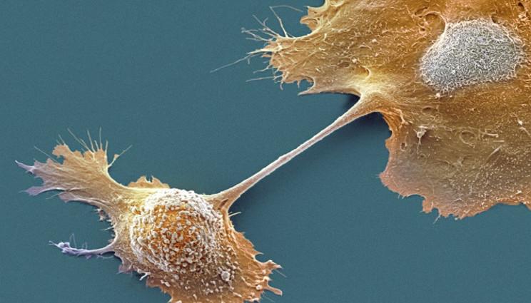 Studio sfata mito 'sfortuna' come causa principale tumori