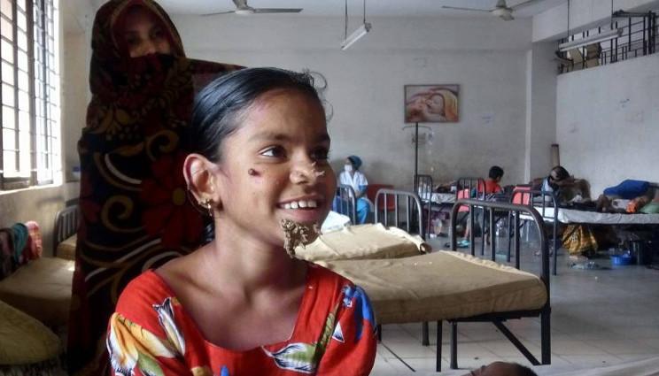 Sindrome uomo-albero, prima bimba affetta in Bangladesh