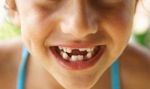 bambini dentista