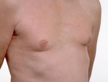 Cancro al seno, un problema anche maschile