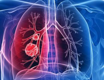 Tumore al polmone, rivoluzione nell'approccio