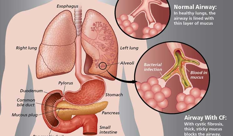Fibrosi cistica, assistenza e ricerca a rischio tagli