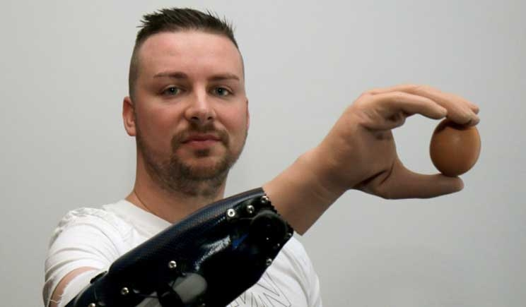 "Austria: impiantate tre ""mani bioniche"" manovrate dal pensiero"
