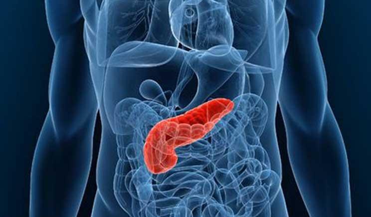 """Arriva in Italia il farmaco """"miracoloso"""" contro il tumore al pancreas"""