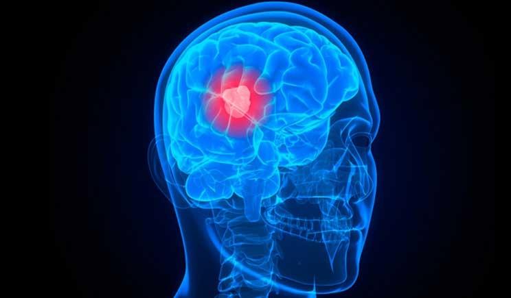 Cancro al cervello, Ideato un farmaco che contrasta la proliferazione