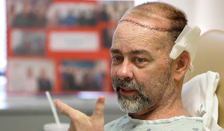 Negli Usa il primo trapianto di cranio e cuoio capelluto