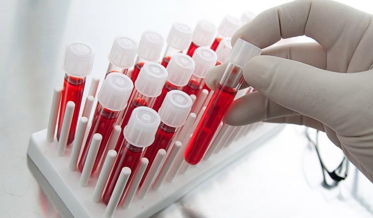 Tumori: diagnosi precoce grazie ad un esame del sangue hi-tech