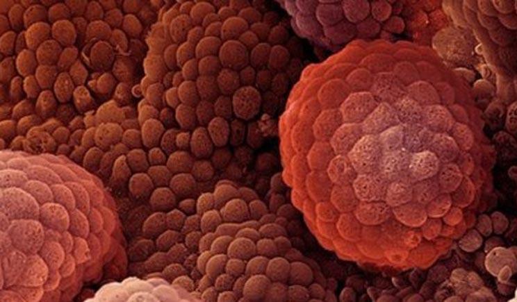 Un uomo su due ignora i sintomi del cancro alla prostata