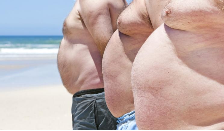 L'obesità  interesserà  un adulto su 5 entro il 2025