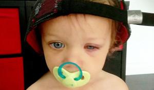 detersivi danni agli occhi