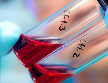 Hiv: il 15% dei contagiati non è al corrente della situazione clinica