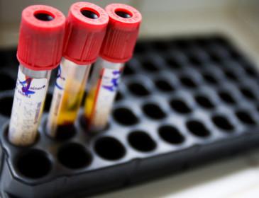 Aids sconfitta da una terapia sperimentale?